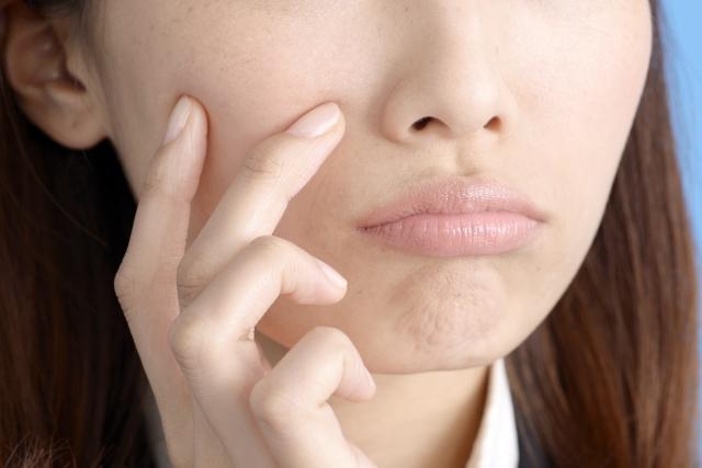 アピナチューレWリッチローションの口コミは?白い肌になるために